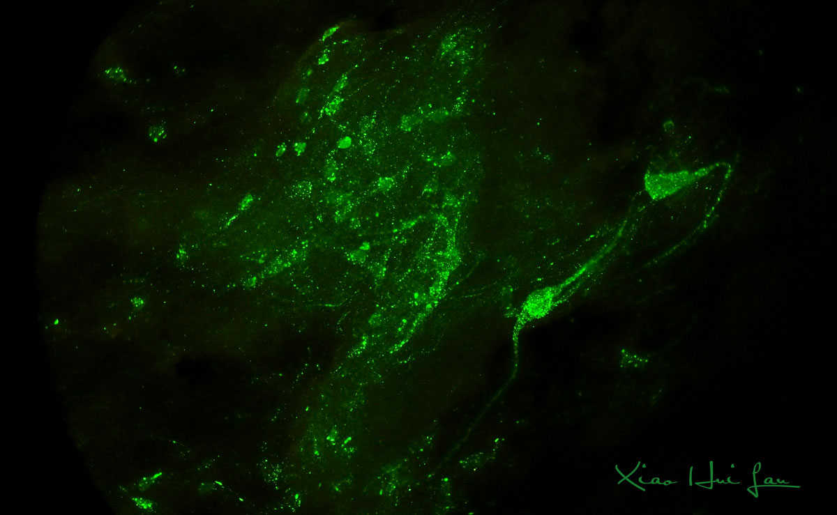 Positive brain tissue by Rabies Direct Fluorescent Antibody (DFA) test